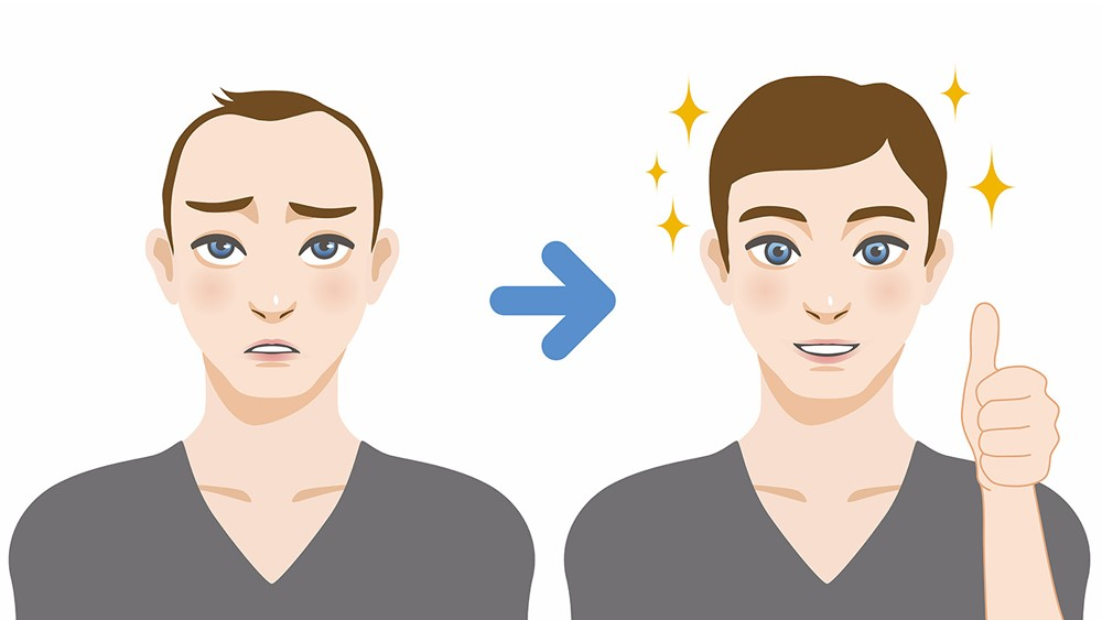Hair Transplant Misconceptions